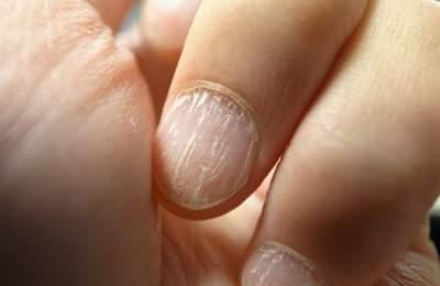 изменение цвета ногтевых пластин