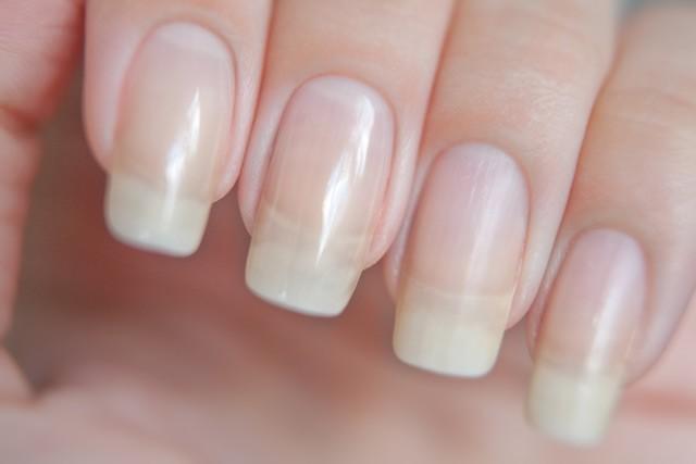 рак можно диагностировать по ногтям
